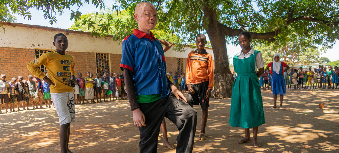 Chinsisi Jafali, a 14-year-old with albinism in Malawi stands proudly alongside his classmates.