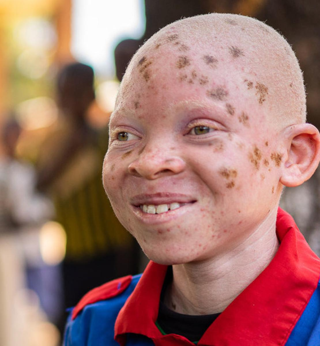A smiling child with Albinism, Chinsisi Jafali (Right), sits with his classmate (left).